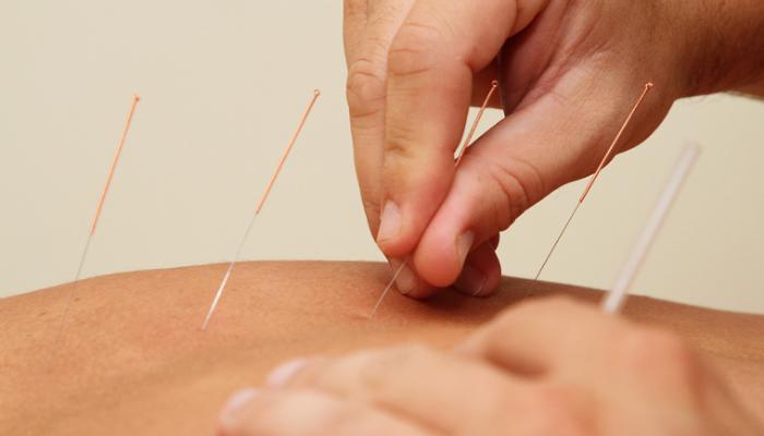 Fisioincorpore_acupuntura clínica