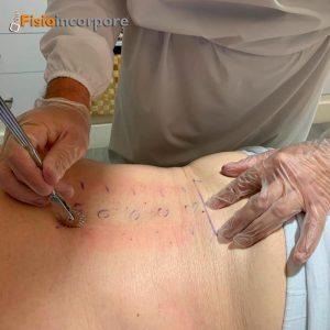 Discopatía_degenerativa_tratamientos