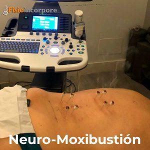 Discopatía_degenerativa_neuro-moxibustión