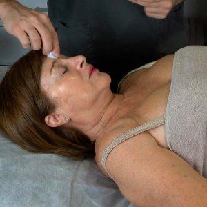 migraña_acupuntura