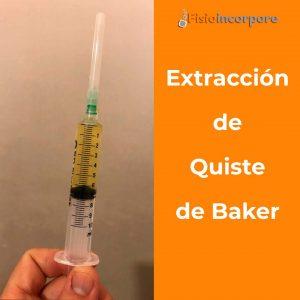 Extracción_quiste_baker